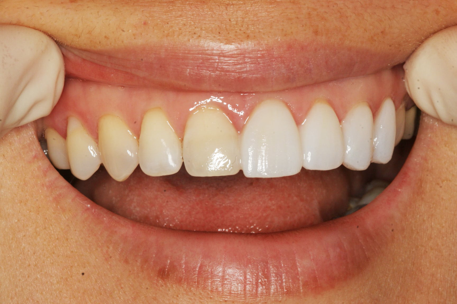 The best no-prep veneers