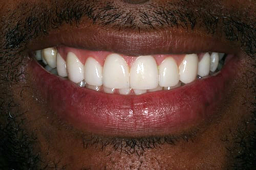 K. Carlos after teeth with veneers